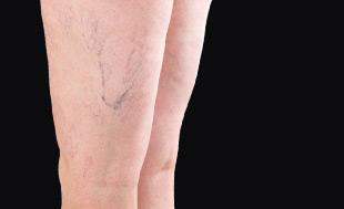vascular lesions - grid image 001