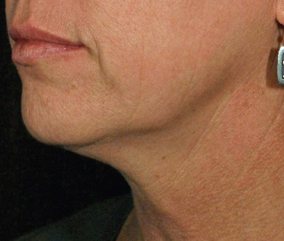 skin tightening - before and after gallery - patient 008 - side view