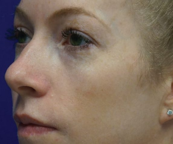 skin pigmentation 020 - female patient - side view