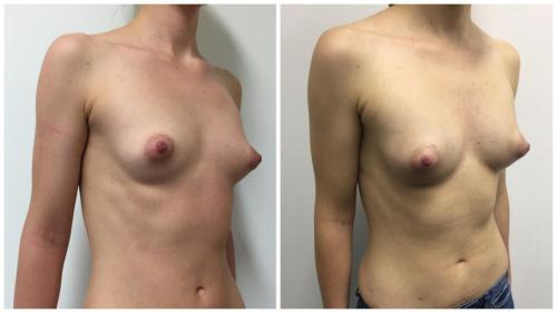 Before & afters, AFT patient 2, angle view, breast fat transfer