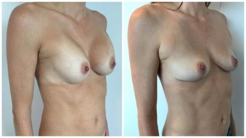 Breast Fat Transfer (AFT) patient 3, angle view