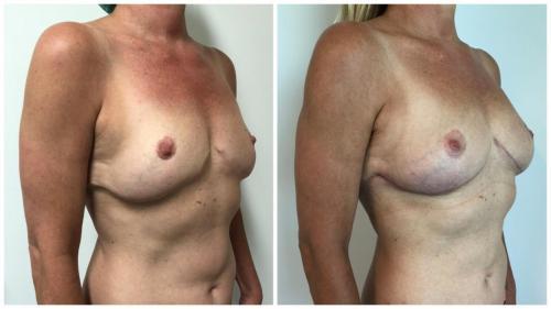 Dr Sawhney, autologous fat transfer, patient 4, angle view, Sculpted Clinic photos