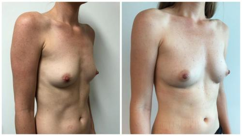 Before & after breast fat transfer (AFT), patient 7 angle, Sculpted Clinic Gold Coast