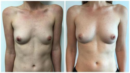 Breast fat transfer (AFT) with Dr Sawhney, patient 7 front