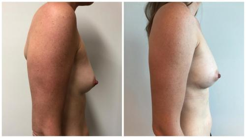 Breast fat transfer surgery before and after (AFT), patient 7 side view, Dr Sawhney Gold Coast