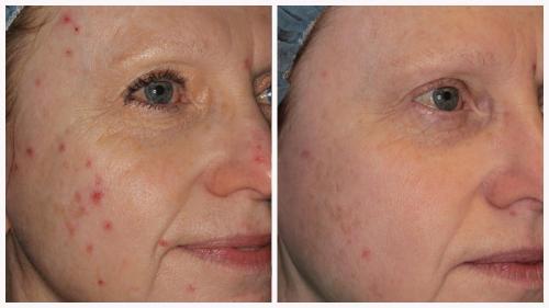 Case 2 - acne