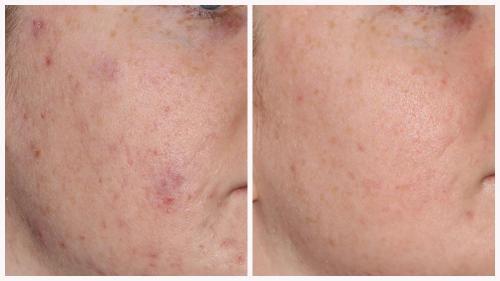 Case 3 - acne