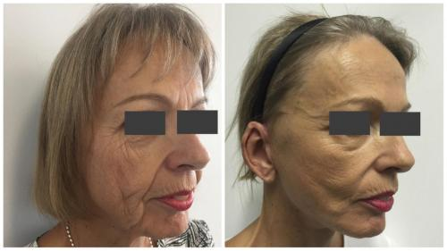 PatientFacelift1Angle