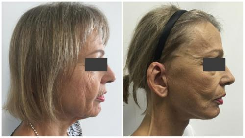 PatientFacelift1Side