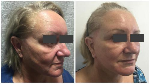 PatientFacelift2Angle