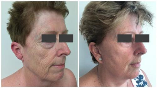 PatientFacelift3Angle