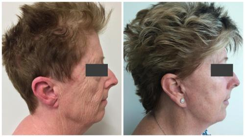PatientFacelift3Side