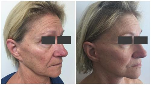 PatientFacelift4Angle