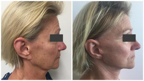 PatientFacelift4Side