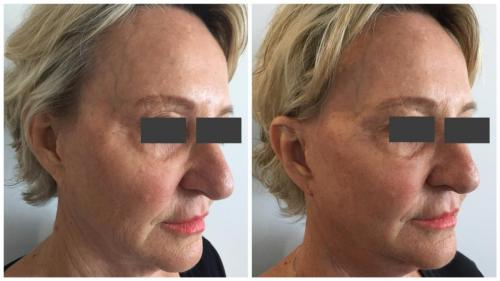 PatientFacelift5Angle