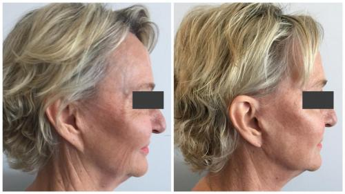PatientFacelift5Side