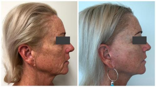 PatientFacelift6Side