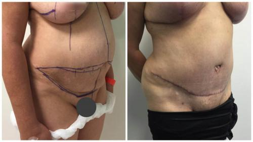 Patient 19 angle, abdominoplasty surgery, Sculpted Clinic photos