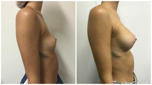 Patient 14 Side (1)