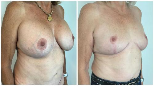 Patient 1, angle view, breast implant removal, fat transfer and breast lift