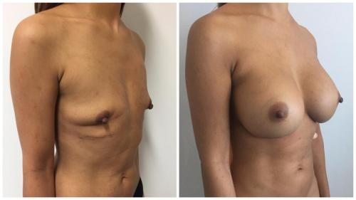 Before and after breast augmentation with implants and breast fat transfer, patient 1 angle