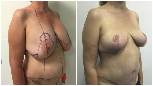 Mastopexy surgery (breast lift) patient 1, angle view, Dr Sawhney