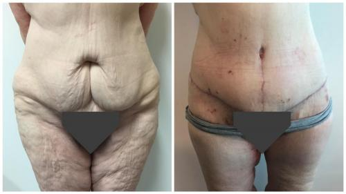 Dr Sawhney, body lift patient 1 before and after surgery, front view