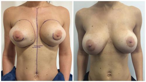 Patient 1 Front (1) (1) (1)