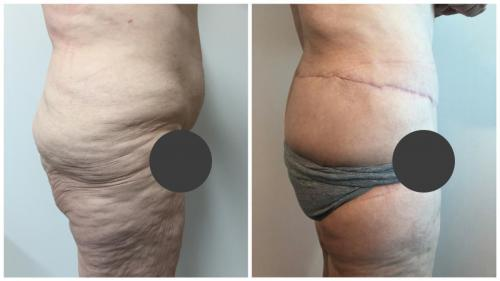 Before & afters, patient 1, side view, body lift surgery, Sculpted Clinic