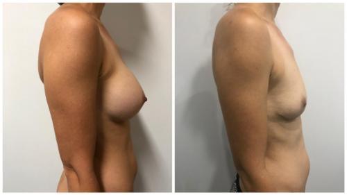 Patient 1 Side (1) (1) (1) (1) (1)