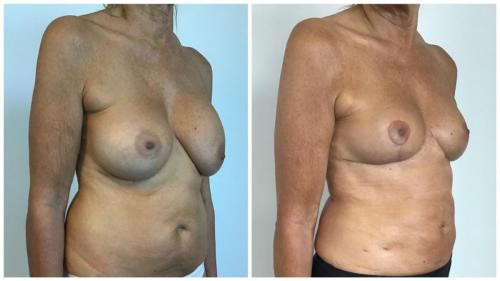 Patient 2, before and after breast implant removal with fat transfer & lift, Dr Sawhney, angle view