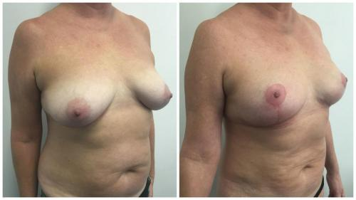Before & after gallery, breast lift patient 2, Dr Sawhney, angle view