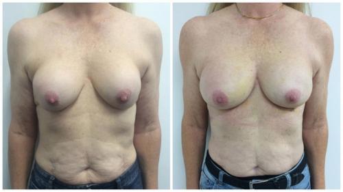 Patient 2 Front (1) (1) (1)