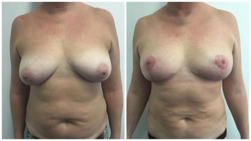 Dr Sawhney, breast lift patient 2, front view
