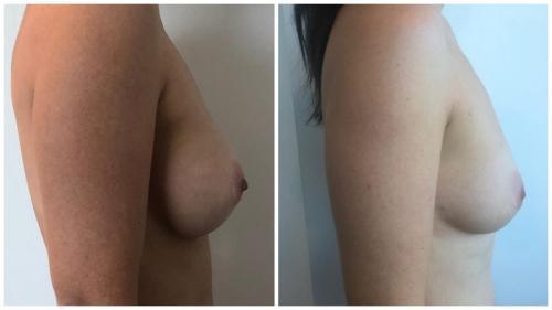 Patient 2 Side (1) (1) (1) (1) (1)