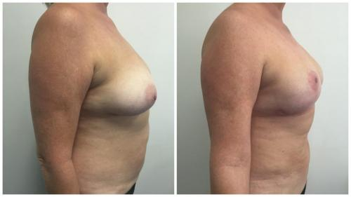 Breast lift Gold Coast, patient 2, side view