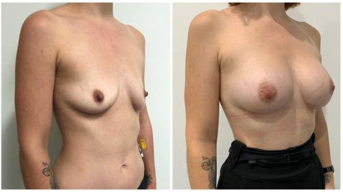 Breast augmentation with implants and fat transfer, before & after gallery, patient 2 angle