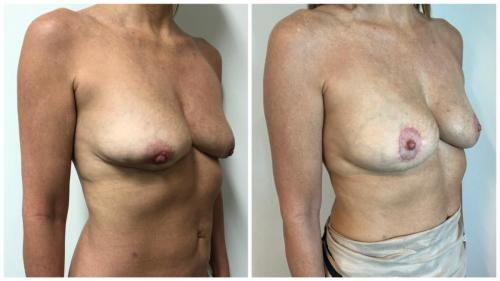 Dr Sawhney, breast implant removal, AFT and breast lift before and after, patient 3, angle view
