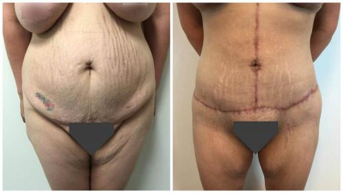 Patient 3, body lift surgery in the Gold Coast, Dr Sawhney, front view