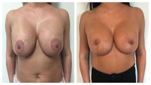 Patient 3 Front (1) (1) (1)