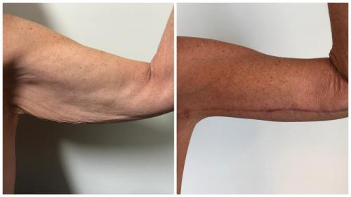Patient 4, before and after arm lift surgery with Dr Sawhney