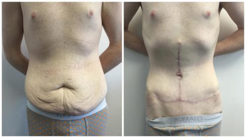 Body lift patient 4 front, before and after