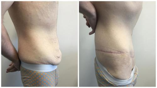 Before & after gallery, patient 4 side, body lift with Dr Sawhney