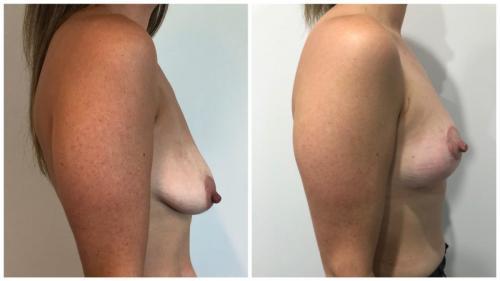Patient 4 Side (1) (1)