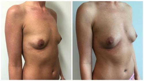 Before and after breast fat transfer, patient 9 angle, Sculpted Clinic Gold Coast