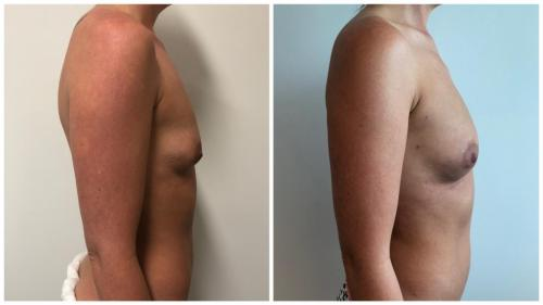 Breast fat transfer (AFT) patient 9 before and after, side view