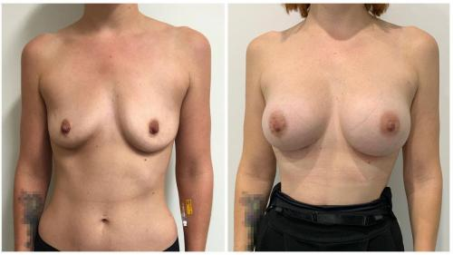 Patient 2 front, breast implants and fat transfer, Dr Sawhney photos