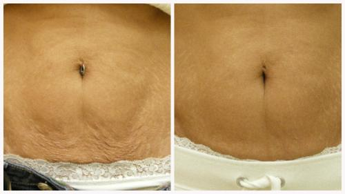 Case 11 - Skin Tightening