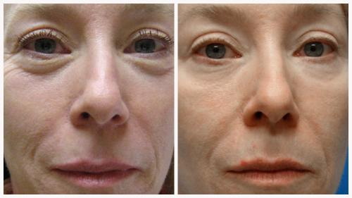 Case 7 - Skin Tightening