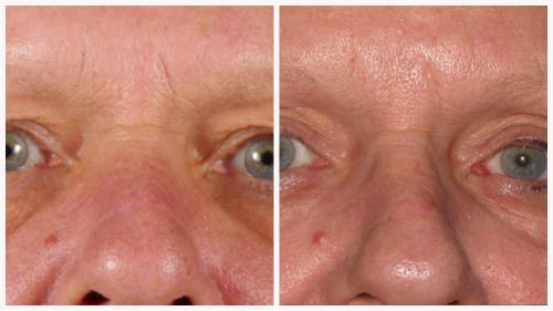 Case 5 - Skin Tightening